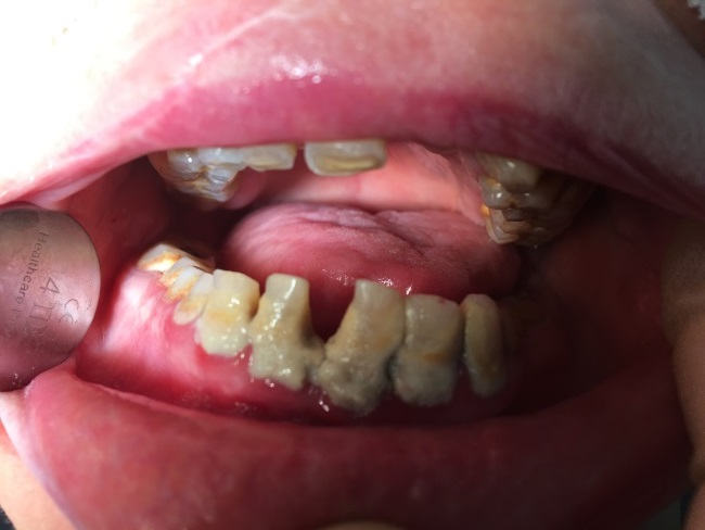 patient-case-poor-oral-health.jpg